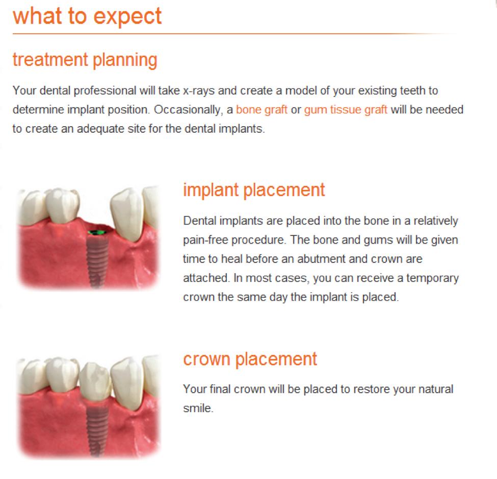 implantexpect