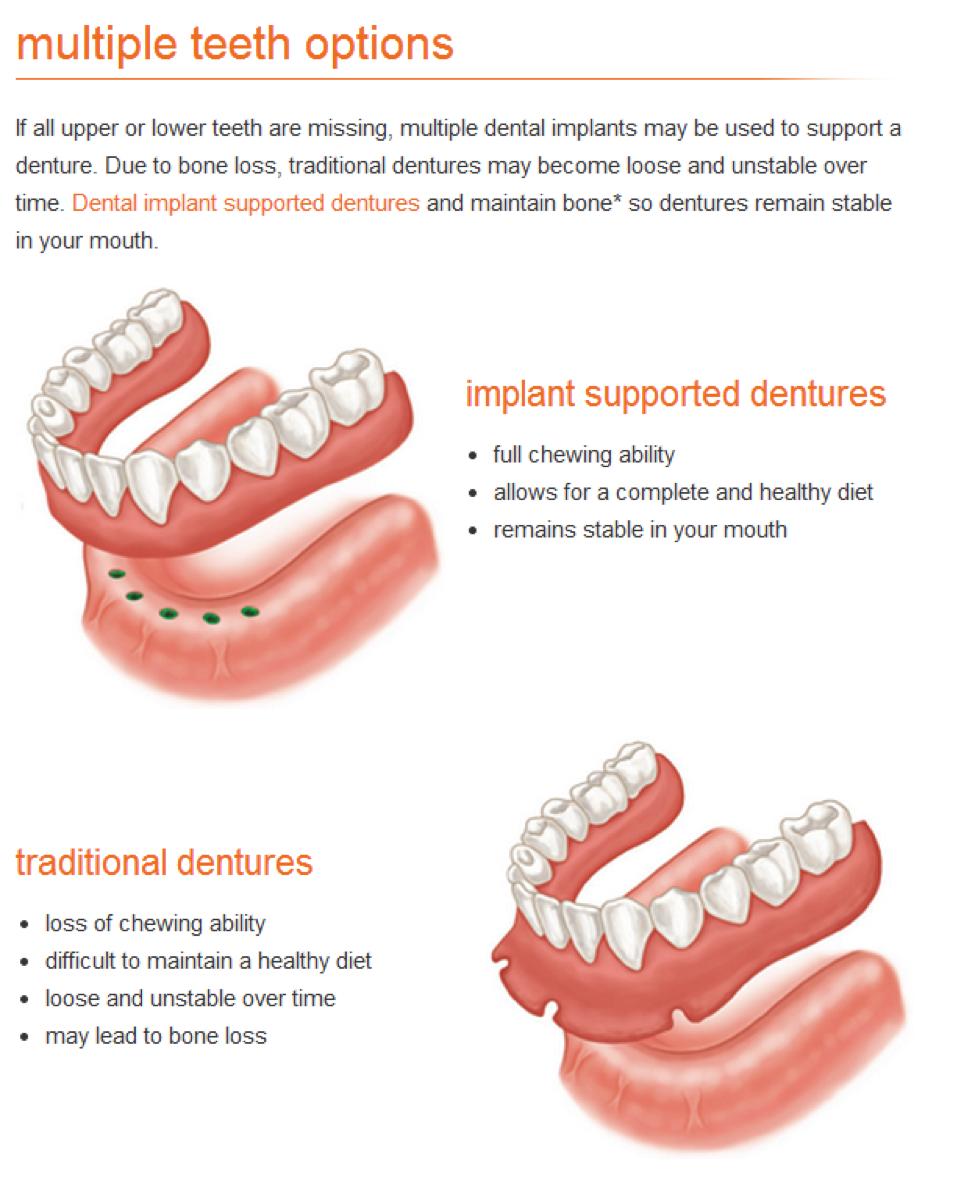 multiple-teeth